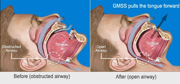 gmss review