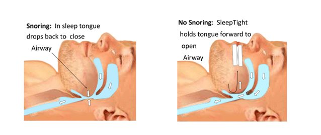 how sleeptight mouthpiece works