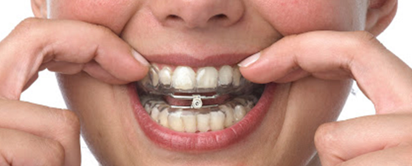 Best Mandibular Advancement Devices