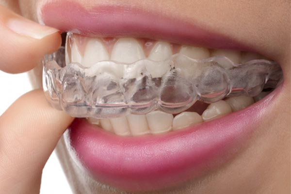 3 Alternatives to Night Guards for Bruxism 1